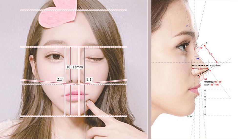 Deviated Nasal Cartilage
