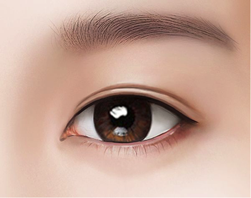 Slim and natural looking eyelids after the muscle and fats are removed.