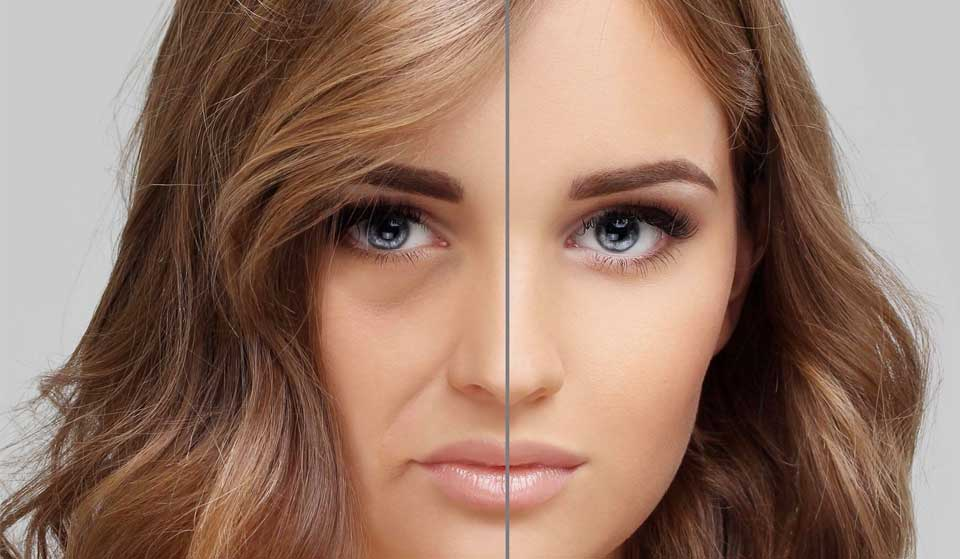 Transformed facial image from depressed and tired look to refreshed and bright face.