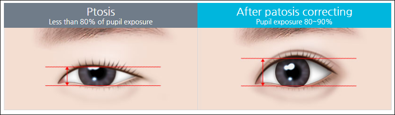 Features of Ptosis Correction