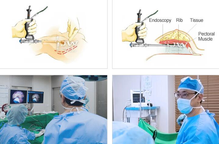 Breast augmentation using HD endoscopy equipment.