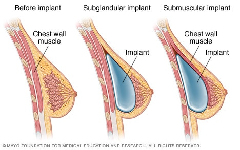 Placement of breast implants