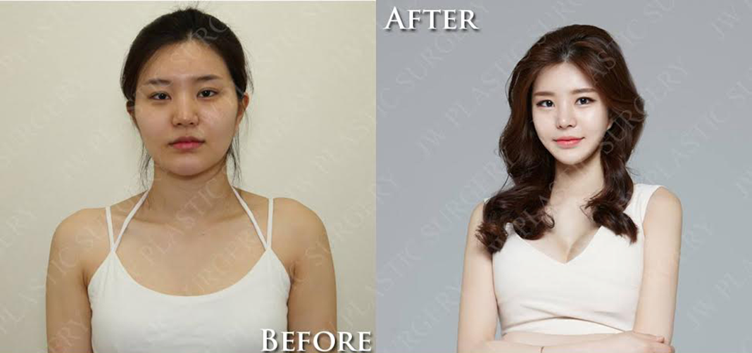 Before / After