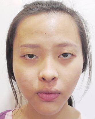 The image before double eyelids surgery