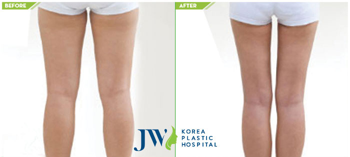Before and after thighs liposuction