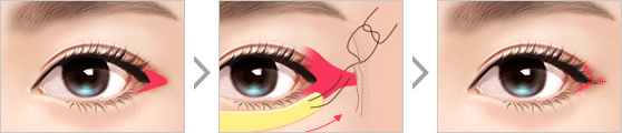Revision Lateral Canthoplasty
