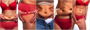 Tummy Tuck - Image 2