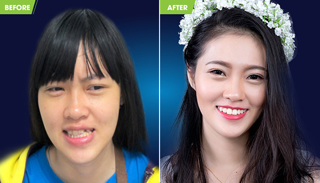 The result of combining braces and surgery
