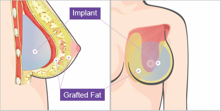 Combined Breast Augmentation