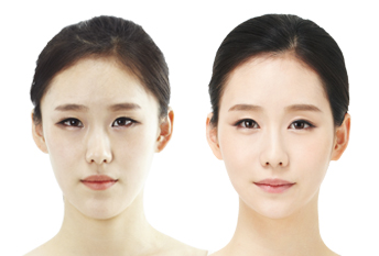 Double Eyelid Surgery | Eye Surgery | JW Korean Plastic Hospital