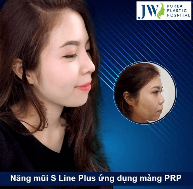 We provide the most suitable Hump nose correction procedure, considering your nose shape and conditions.