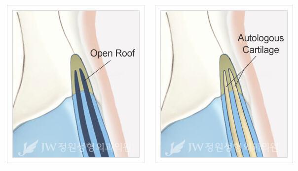Nasal Osteotomy