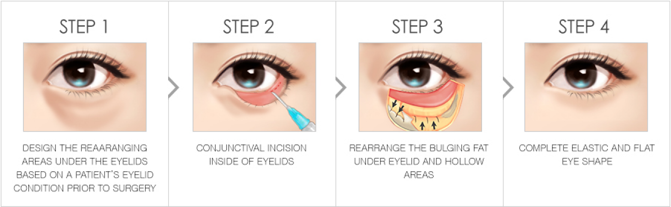 Get rid of dark circles and bulging fat under your eyes