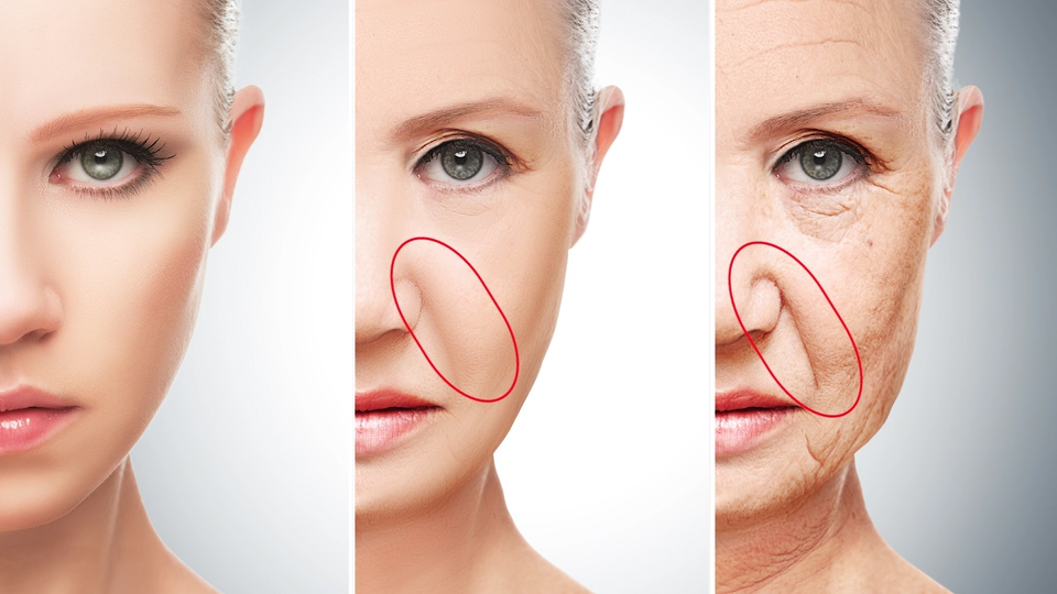 Improvement of saggy cheeks and nasolabial folds