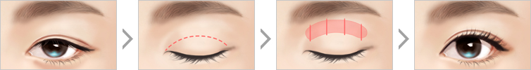 Procedure of Incision Ptosis Correction
