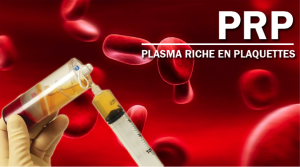 S-line plus rhinoplasty of coating the implant with Platelet Rich Plasma (PRP)