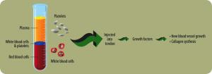 S Line Plus Rhinoplasty - Image 3