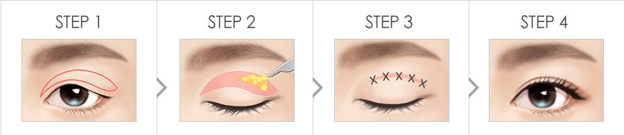 Procedure of Upper blepharoplasty