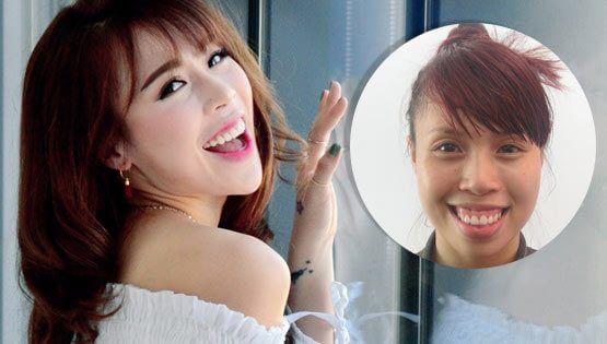 Hot Vietnamese Dancer owns a V-shaped face after surgery at JW Hospital