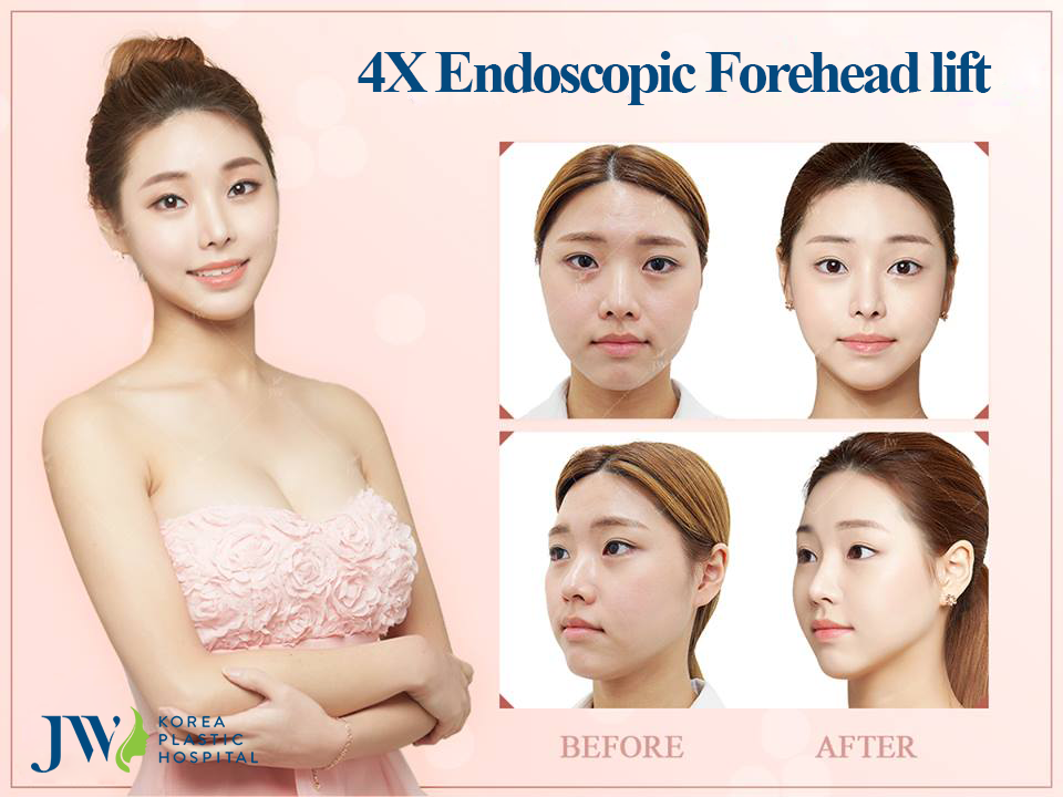JW Hospital provides best results with 4X Endoscopic Forehead Lift in Vietnam.