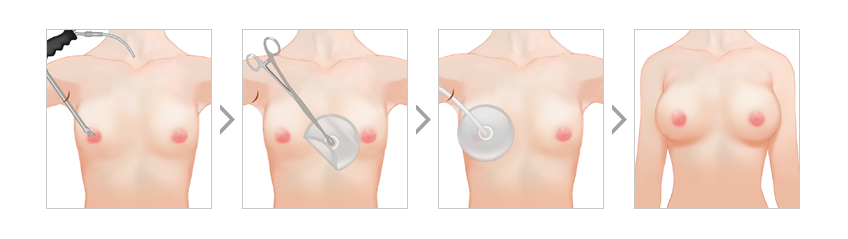 Secure space for breast implants using HD endoscopy equipment for breast surgery