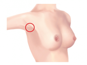 Areola incision