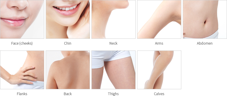 Areas of application for Liposuction