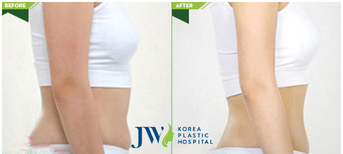 Before and after arm Liposuction