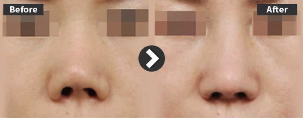 Shortened nose with contracture