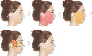 SMAS facelift procedure