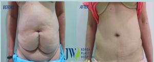 Total Abdominoplasty (liposuction and tummy tuck)