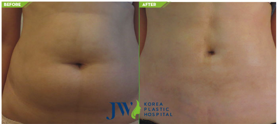 Endoscopic Mini Abdominoplasty