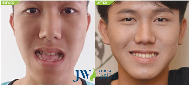 The result of underbite correction surgery without braces