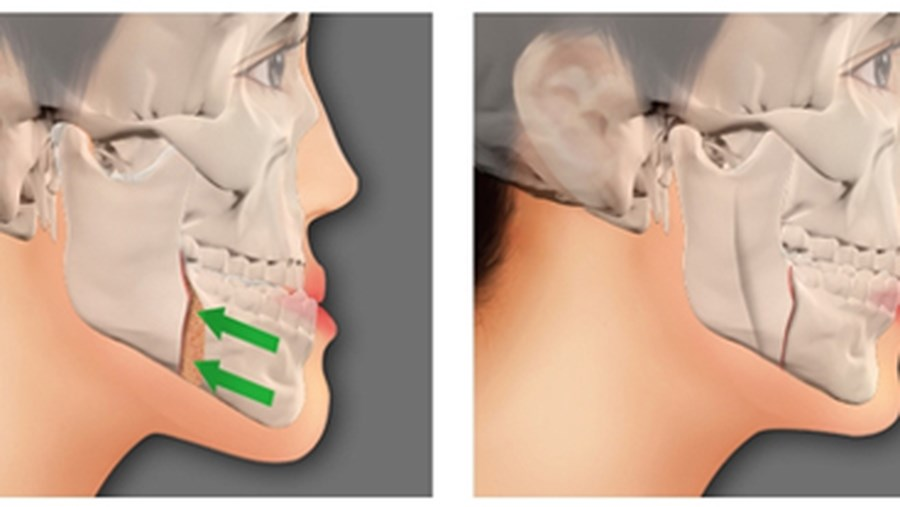 BSSO – the method for lower jaw surgery