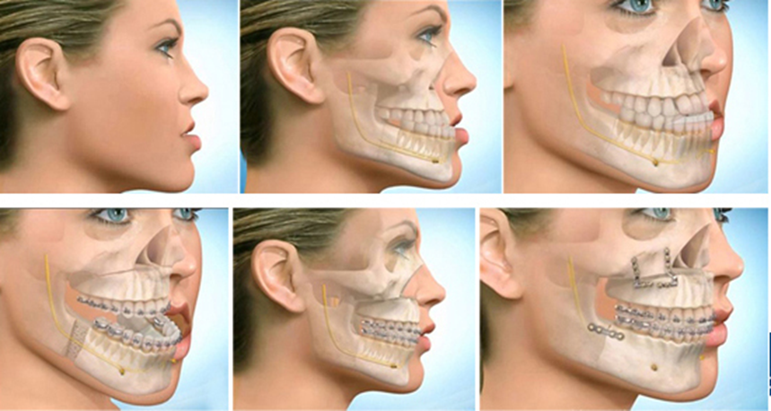 BSSO Lower Jaw Surgery procedure